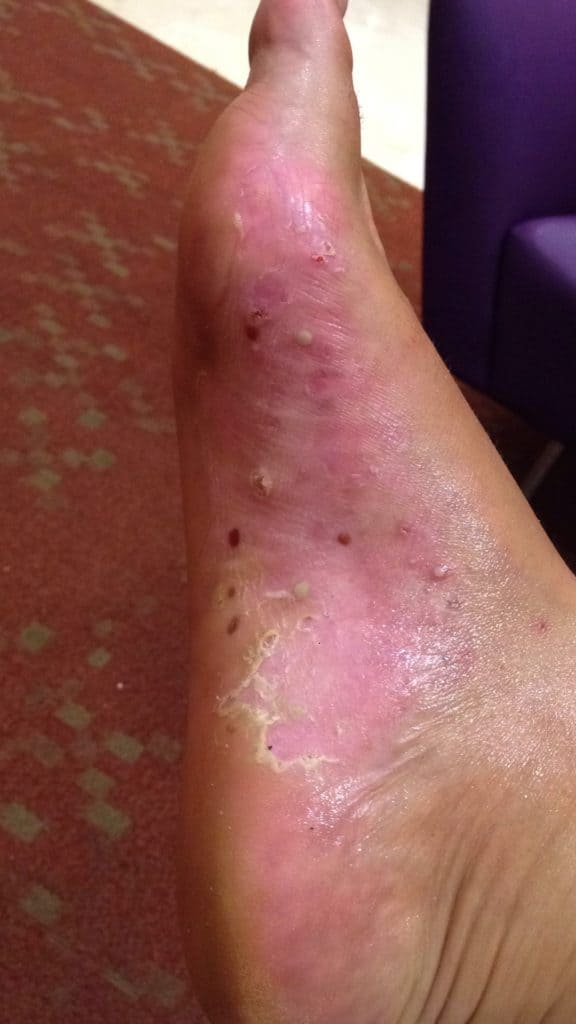 Totes Meer, Schuppenflechte, rechter Fuß nach 10 Tagen